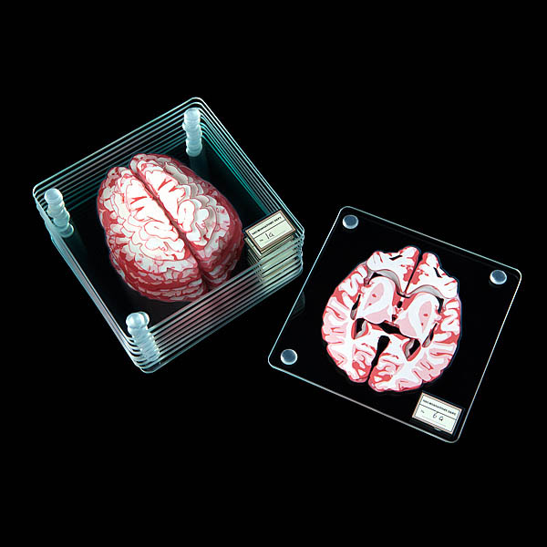 Brain Specimen Coasters, Need Slice of Brain?